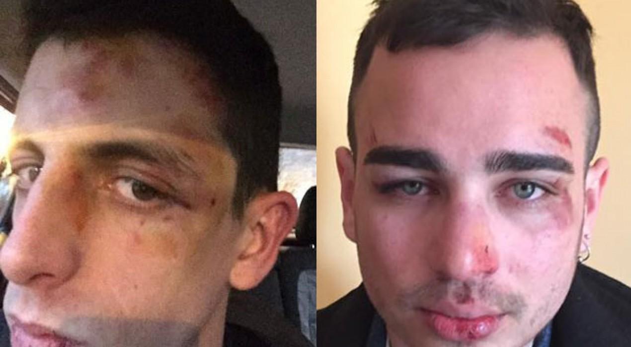 L'autor de l'agressió homòfoba, un jove berguedà amb fama de violent i buscabregues